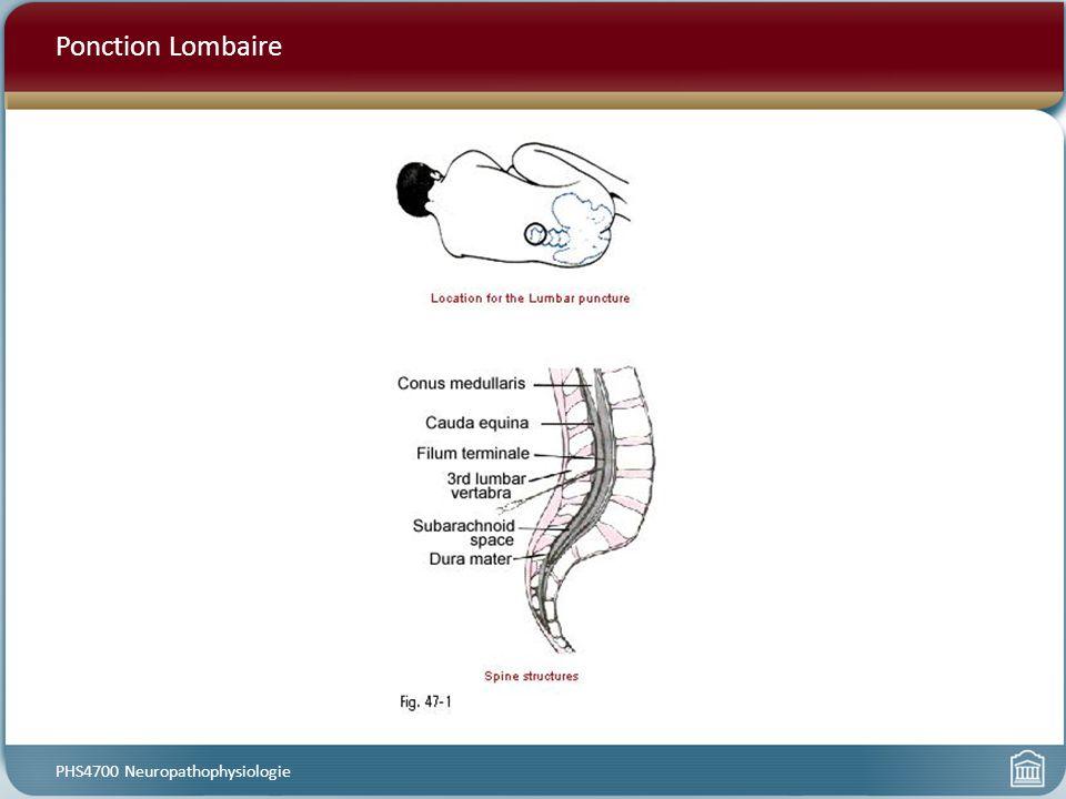 Ponction Lombaire [Ponction Lombaire] Les échantillons de liquide céphalorachidien peut être obtenue pour vérifier que son contenu est normal.